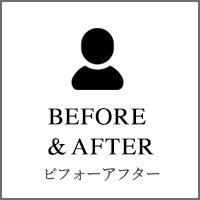 BEFORE&AFTER VOICE ビフォーアフター